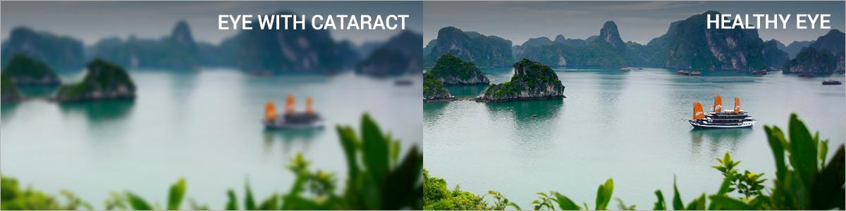 BV_CataractSymptoms_LP_Ver6_03