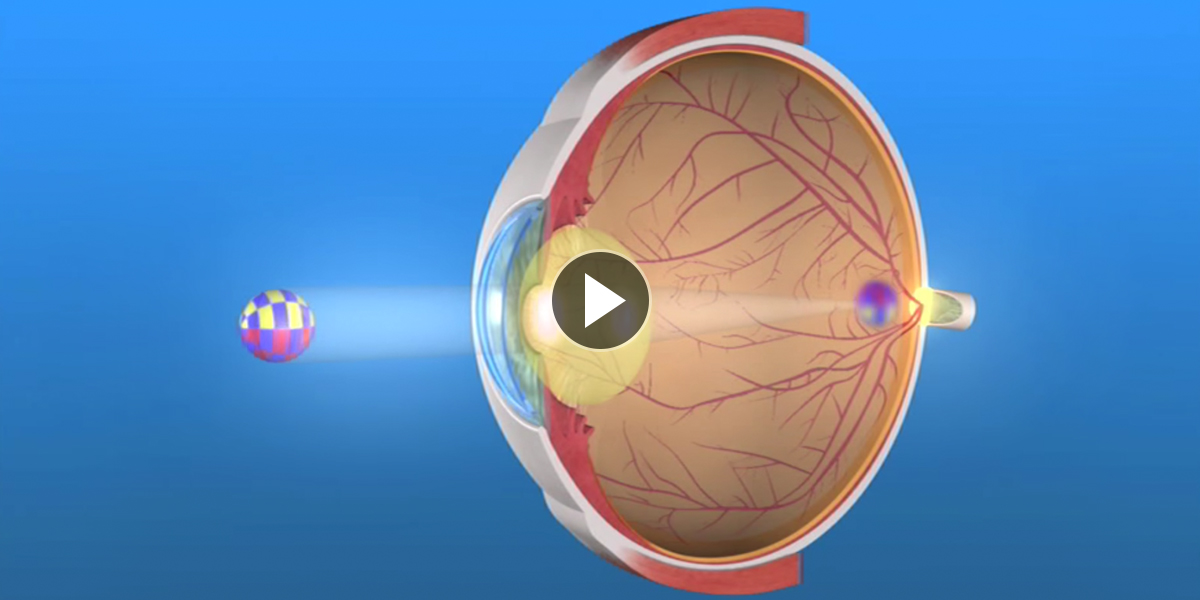 Cataract-Treatment-Page