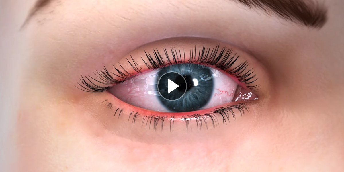 Dry-Eye-Symptoms-Page