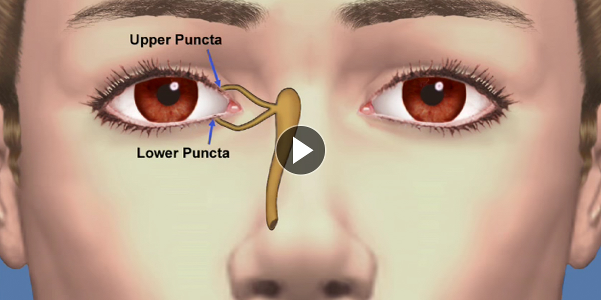 Dry-Eye-Treatment-Option-Page-Punctal-Plugs